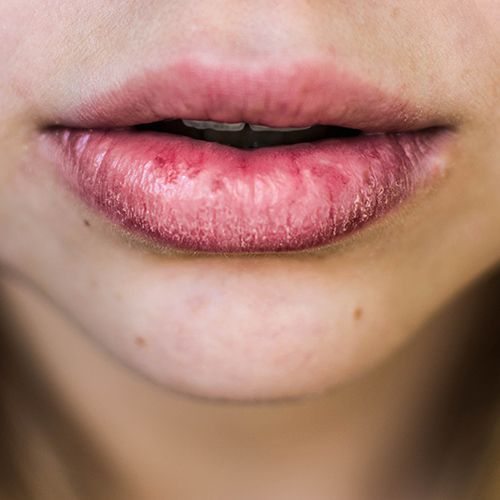dry, chapped lips